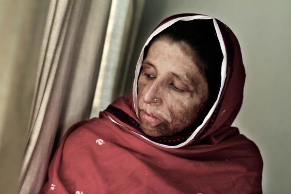 Scena iz filma 'Sačuvati obraz' (Saving face), dokumenta kojim  amerikanac Daniel Junge i pakistanac Shrameen Obaid-Chinoy ukazuju na zvjerski odnos prema ženama u Pakistanu.