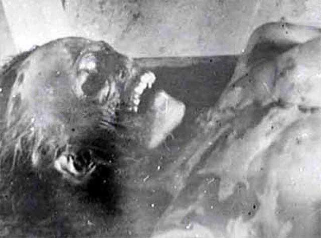 Truplo Ljudmile Dubinine pokazuje slične simptome kao i ono Zolotairova: do lma plućnih kostiju najvjerojanije nije došlo uslijed kontuzije, već djelovanjem tlačnog udara!